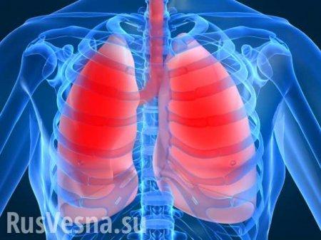 Врачи создали 3D-симуляцию изменений в лёгких при COVID-19 (ВИДЕО)