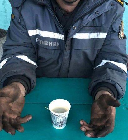 Спасатель из Чернобыля показал жуткие последствия своей работы: чёрные руки и обожжённые до дыр ноги (ФОТО 18+)