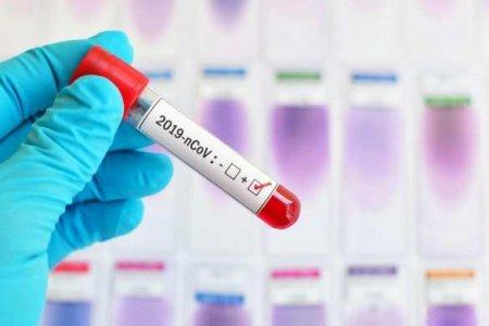 Коллективного иммунитета к COVID-19 не существует?